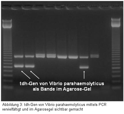 Abbildung 3: tdh-Gen von Vibrio parahaemolyticus mittels PCR vervielfältigt und im Agarosegel sichtbar gemacht