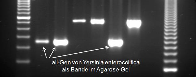 Abbildung 3: ail-Gen von Yersinia enterocolitica mittels PCR vervielfältigt und im Agarosegel sichtbar gemacht