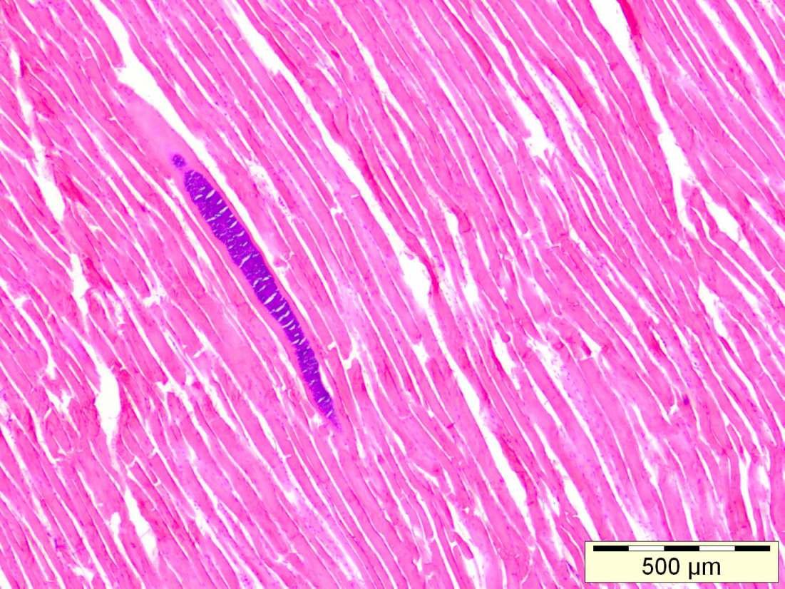 Abb 2 und 3: Histologischer Längs- und Querschnitt: Sarcocystis spp. aus Wildschwein, Hämatoxylin-Eosin-Färbung.