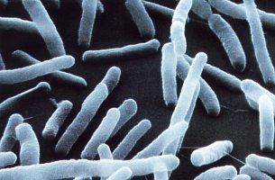 Foto: Escherichia coli (Stäbchenbakterien).