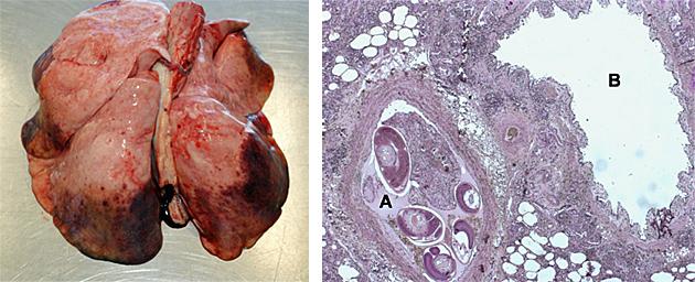 Lungenkrebs: Die Lunge kennt keinen Schmerz