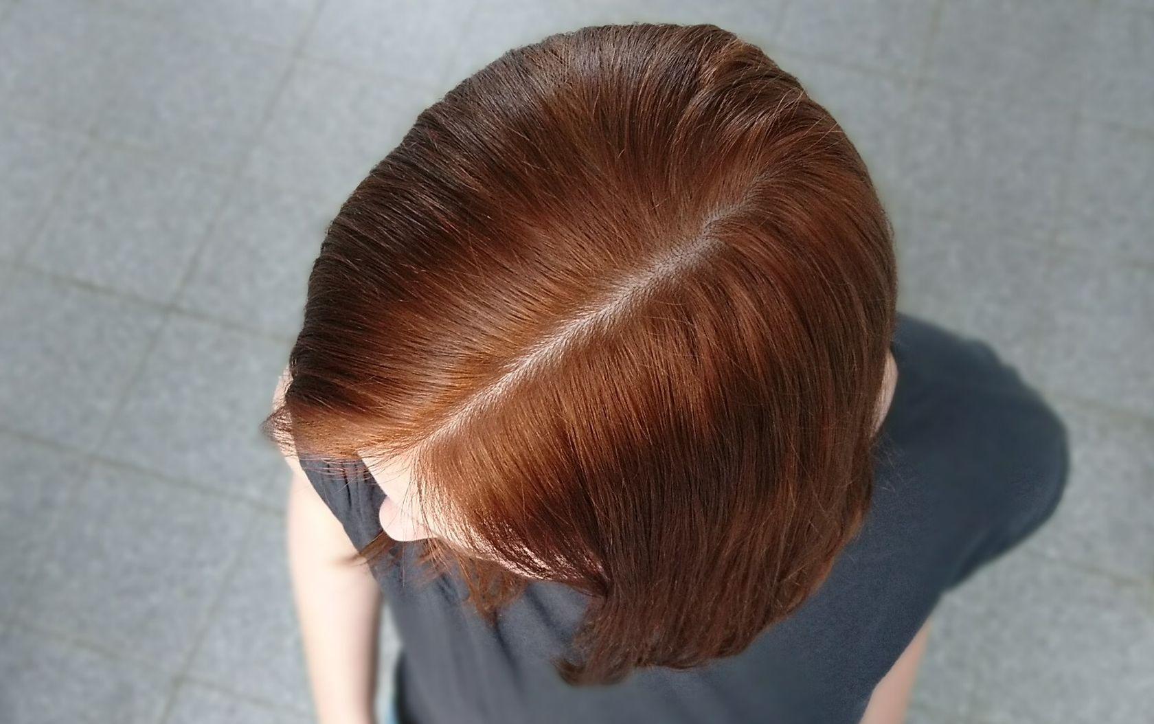 Auf dem Foto ist der Kopf einer jungen Frau mit rotem Haar von oben zu sehen. Ihr Scheitel ist frei von Schuppen.